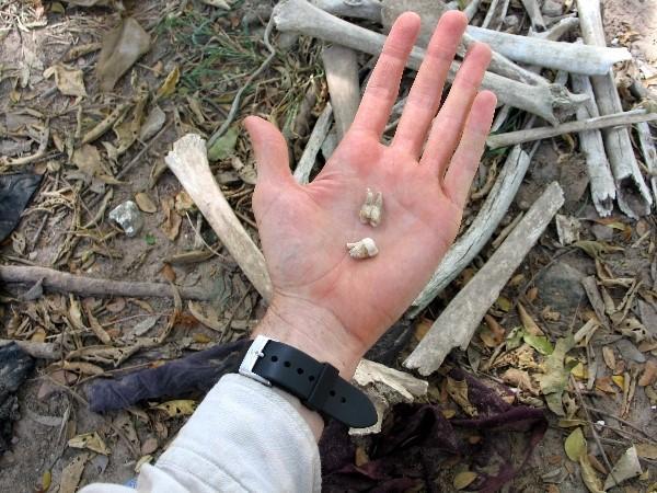 Những chiếc răng của các nạn nhân sót lại nằm rải rác trên nền đất .